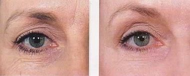 Microneedling wrinkles in the delicate area like around the eyes