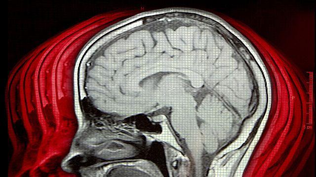 Chronic Traumatic Encephalopathy (Brain Damage)    #CTE #Brain Injury #Brain Injury Association of Virginia