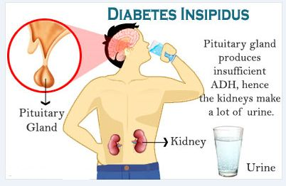 diabetes insipidus - Google Search