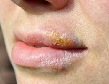 Here's the most powerful natural herpes cure on the planet, along with other home remedies for herpes that are astoundingly effective...