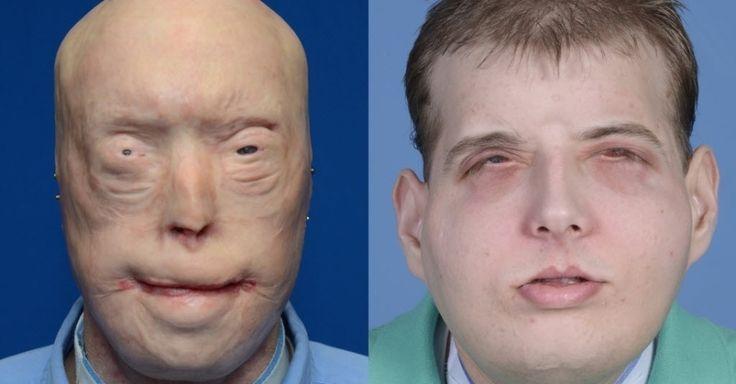 Esta combinação de fotos fornecidas pelo centro médico Langone, da Universidade de Nova York (EUA), mostra o rosto de Patrick Hardison antes e depois de sua cirurgia de transplante facial. Hardison teve o rosto queimado em 5 de setembro de 2001 quando trabalhava como bombeiro voluntário. Ele entrou em uma casa em chamas para procurar uma mulher quando o teto desabou. O acidente provocou queimaduras de terceiro grau na cabeça, pescoço e na parte superior do tronco