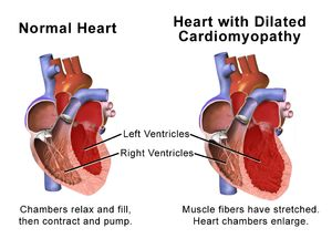 Dilated cardiomyopathy - Wikipedia