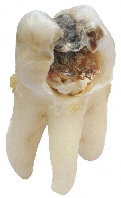 Un #diente sin dolor no es sinónimo de salud; la #caries es una enfermedad lenta y progresiva, causando dolor cuando existe un daño severo. No olvides visitar a tu #dentista cada 6 meses. Cuida tus dientes, están hechos para durar toda la vida sanos con los cuidados pertinentes!