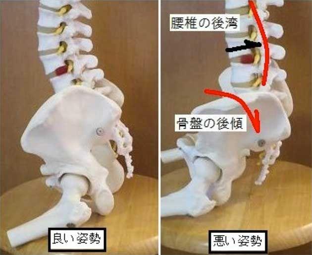 今回は股関節から考える反り腰改善法です。 腹部の土台になる骨盤が後方に傾いていては、綺麗な立ち方にはなりません。   そこで今回は、悪い姿勢を良い姿勢(骨盤を起こした状態)にもっていく運動を紹介します。   反り腰改善エクササイズ② 膝押し運動    【1】うつ伏せになり、手はお凸の下におきます。 【2】片膝を曲げ、床を押すように徐々に力を入れます。 【3】2~3秒力を入れ脱力し、繰り返します。   これを左右10回×2セット行います。 お腹に力をいれながらすると腰を傷めずに運動できます。   Point 1:腰が反りすぎないよう注意しましょう。 Point 2:ももの付け根(前面)の筋肉に力を入れましょう。     お尻から太もも裏にかけて硬くなっているため、 骨盤が後方に傾いた(悪い姿勢)方が多々おられます。 そんな方に有効な運動です。 次回は『反り腰』姿勢改善法、重心を意識した立ち方で紹介します。