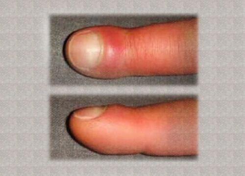 De ce se mi s-au umflat degetele?