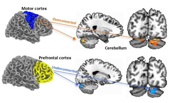 Ces scientifiques de la San Diego State University montrent, via l'imagerie par résonance magnétique fonctionnelle, que chez les enfants autistes, certaines zones sensori-motrices du cerveau deviennent sur-connectées au détriment du développement de fonctions cognitives supérieures comme la prise de décision, l'attention et le langage.   Une récente étude, publiée dans la revue Neuron avait déjà sug