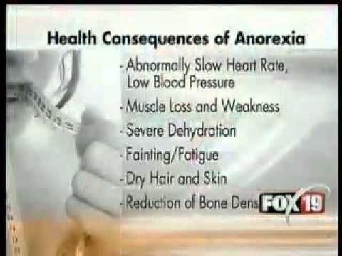 anorexia nervosa research paper