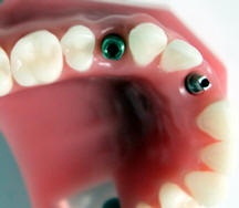 Dental implant- Impression to Seat. Show asst ASAP!