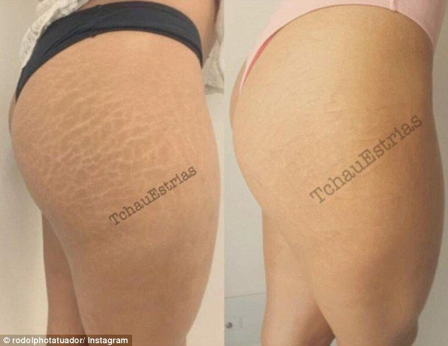 Now you see them: Tattoo artist, Rodolpho Torres , from São Paulo, has built up an Instagram following of 1.2 million; all because he specialises in stretch mark tattoo camouflage (pictured)
