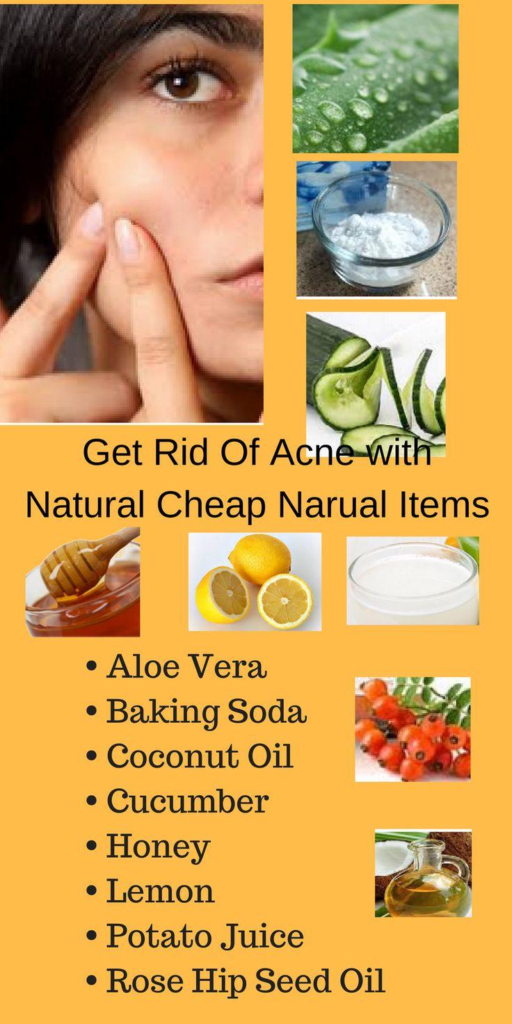 pimple scars  Simple natural care  http://skinremarkable.com