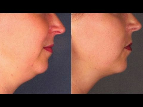 How to Get Rid Of Double Chin Fast With Face Massage  | Neck Fat Reduction Without Surgery  - YouTube