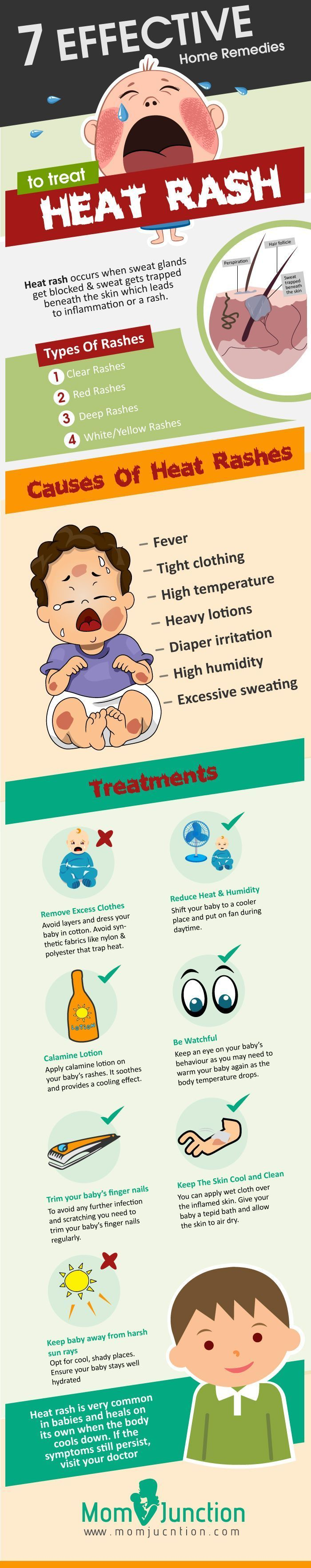 Home Remedies To Treat Heat Rash In Babies: Generally, heat rashes vanish in a few days. You can try out the following remedies at home to relieve your baby from intense itching caused due to heat rash