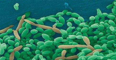 Ako sa zbaviť kvasinkovej infekcie prírodným spôsobom