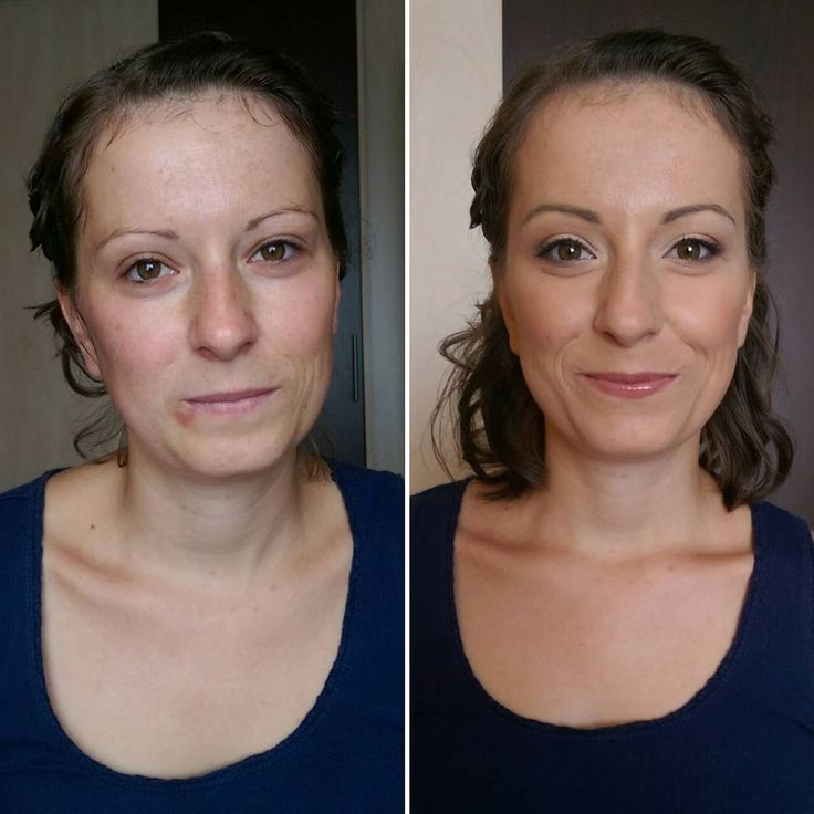 Before- after  www.mateannasmink.hu