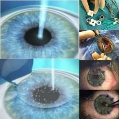 Retina Surgery in Hyderabad can now be obtained from Sreenetralaya eye care Hospital. Having well equipped and cutting edge technologies they stand first as per technology.