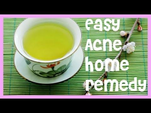 home remedies for acne mask