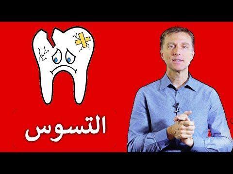 الحل النهائي لتسوس الأسنان للبالغين والأطفال Youtube Dr Berg Health Character
