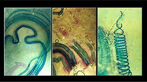 Photographs showing xylem elements in the shoot of a fig tree (Ficus alba): crushed in hydrochloric acid, between slides and cover slips.  Vascular plant - Wikipedia, the free encyclopedia