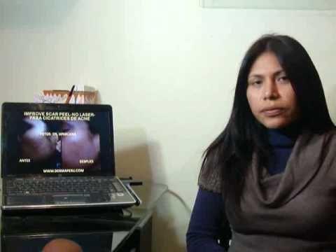 Testimonio: Tratamiento de acne con Improve Scar Peel por Dermatologo en Lima Perú - http://solucionparaelacne.org/blog/testimonio-tratamiento-de-acne-con-improve-scar-peel-por-dermatologo-en-lima-peru/