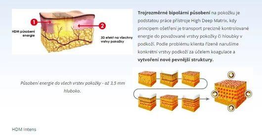High Deep Matrix >>> https://www.medicalinstitut.cz/esteticka-dermatologie/high-deep-matrix    Nadčasová technologie v estetické darmatologii, která zasáhne všechny vrstvy pokožky. Nejsilnější regenerace a kompletní rejuvenace a obnova pleti.