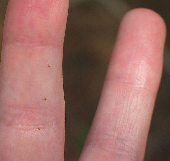 tiny Seed Ticks