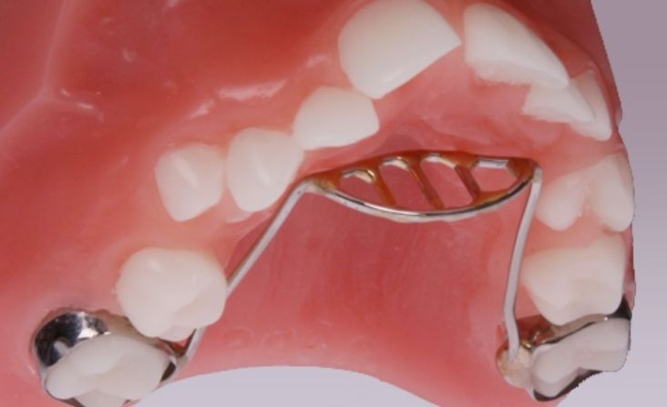 Orthodontic appliances for thumb sucking - Palatal cribs dental appliance