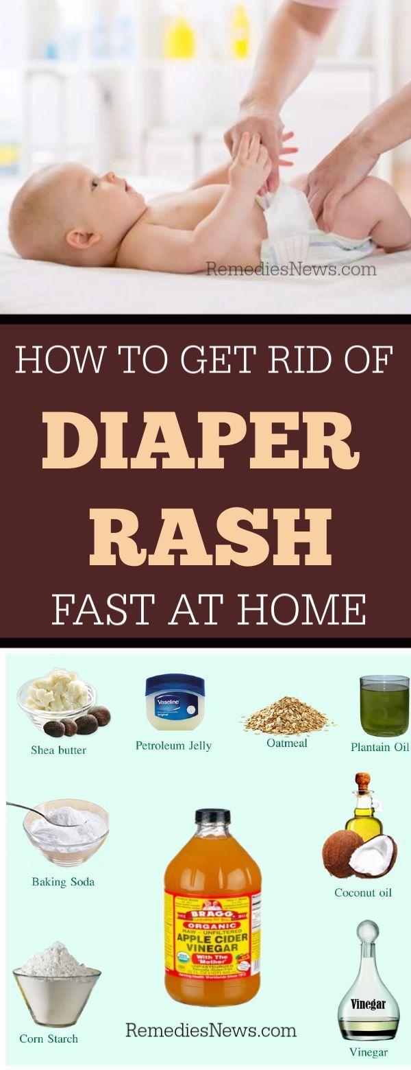 11 Natural Remedies To Get Rid Of Diaper Rash In 24 Hours Viralhug Trending Food Recipes Diaper Rash Natural Remedies Diaper Rash Treatment