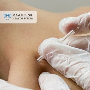 On pins and needles: Just what is dry needling? http://mayocl.in/2jtYiIc