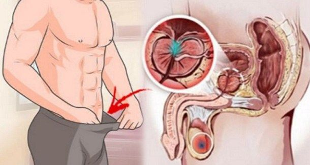 According to the World Health Organization, prostate cancer is one of the most common causes of death among men Unfortunately in most cases, prostate cancer symptoms only appear in the cancer's early development. The symptoms of prostate cancer are different … Read More