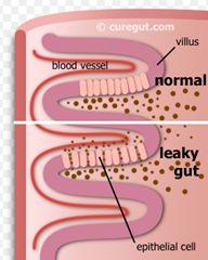 Cure e rimedi naturali: Come capire se si soffre di impermeabilità intesti...