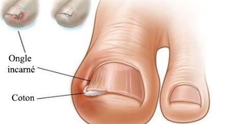 Quand la peau qui entoure l'ongle paraît rouge et enflammée, et que cette partie est douloureuse lorsqu'on la touche, c'est probablement que l'on souffre d'un ongle incarné voire même d'une infection.