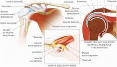 La rupture de l'articulation de l'épaule