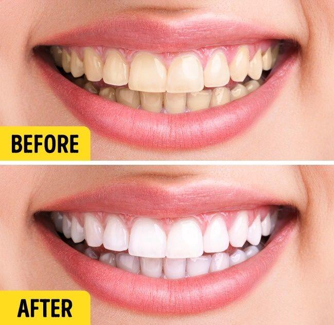 Dovolená je vždy náhlá, i když je plánována měsíce. Většina z nás se obvykle nevyhne přípravámjak z hlediska balení kufrů, tak i samotných těl. Pro takové případy jsme pro Vás připravili seznam sedmi zázračných olejů, které pomohou udržet Vaši přirozenou krásu a připravit se na dovolenou. Sezamový olej pro zdravé zuby Sezamový olej obsahuje četné …