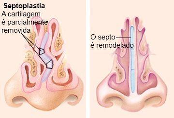 nariz normal e nariz com desvio de septo nasal