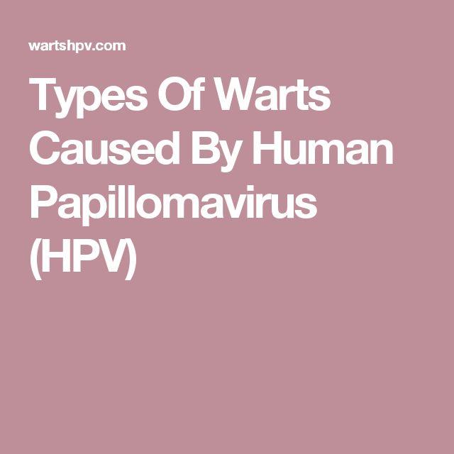 Types Of Warts Caused By Human Papillomavirus (HPV)