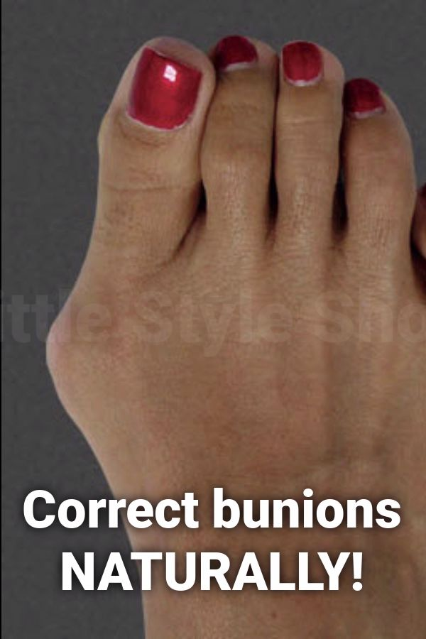 This device helps reduce bunions and foot pain, check it out!