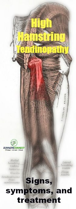 Have a deep, aching pain in your upper hamstring or butt? It might be an injury called High Hamstring Tendinopathy. Here's the scientific signs, symptoms and research-backed treatment solutions for this little known, but very aggravating, injury