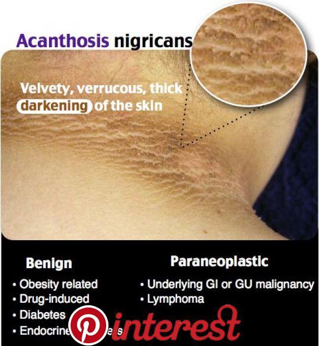 Skin Disorders Skin Disorders | Dermatology nurse ...