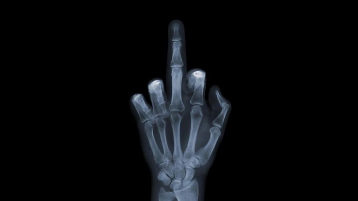 Xray Music Wallpapers: 25 Best XRAY Images On Pinterest