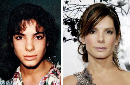 Sandra Bullock Nose Job Plastic Surgery Before And After - http://www.celeb-surgery.com/sandra-bullock-nose-job-plastic-surgery-before-and-after/?Pinterest