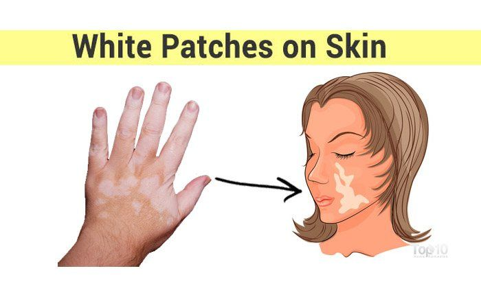 How To Get Rid Of White Patches On Skin Vitiligo Top 10 Home Remedies White Skin Patches Vitiligo White Patches