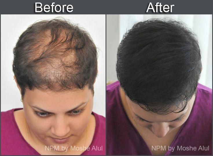 Saç Simülasyonu yada saç dövmesi nedir?