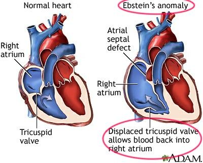 Ebstein anomaly ... 【 Note : Will obviously cause pulmonary oligemia 】