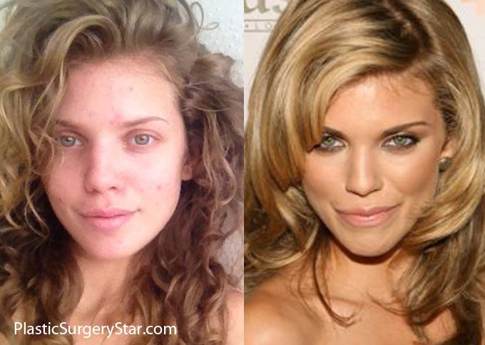 annalynne mccord got a nose job a few years ago before