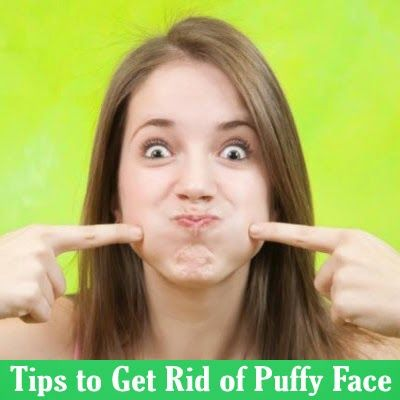 A puffy face or facial puffiness is medically known as facial edema. It is usually caused by water retention, which in turn, is caused by inadequate fluid intake, excessive alcohol consumption, stress, and high salt diet.