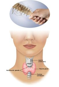 La tiroide e la perdita di capelli 206x300 La tiroide e la perdita di capelli
