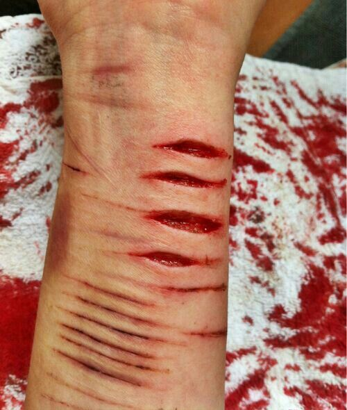 how to cut properly self harm
