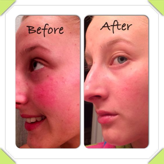 Ergebnis nach Seacret's Mud Soap, toner, and peeling gel! Die Akne, Rosacea und trockene Haut sind Vergangenheit