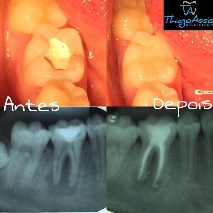 Caso finalizado: paciente chegou com curativo no dente com dor fístula. Depois de algumas sessões foi feito o tratamento endodôntico (tratamento de canal) foto de baixo. E em seguida restauração do dente em resina composta (foto cima). Paciente sem dor sem fístula. #endo #endodontia #casoclinico #dentistry #dentista by thiagocassis Our General Dentistry Page: http://www.myimagedental.com/services/general-dentistry/ Google My Business: https://plus.google.com/ImageDentalStockton/about Our…