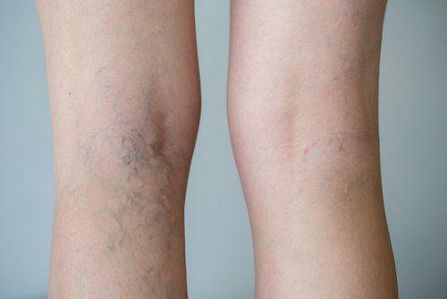 Alimentos que favorecen la circulación de las piernas: ¡Descúbrelos!
